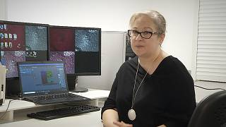 Nanocargo: Η βραβευμένη μέθοδος θεραπείας του καρκίνου του μαστού φέρνει επανάσταση