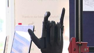 Tunisian Startup Develops a Customisable Bionic Hand Device