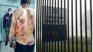 I segni delle brutalità sul corpo di un migrante intervistato dal Danish Refugee Council a Velika Kladusa, Bosnia: accusa la polizia croata di percosse e violenze