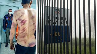 Imagen de la espalda de un migrante tras sufrir agresiones.
