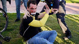 Un partidario del presidente Donald Trump herido después de ser atacado durante una manifestación pro-Trump, el 14 de noviembre de 2020, en Washington.
