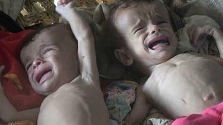 محمد وعلي توأم يمنيان مصابان بسوء التغذية