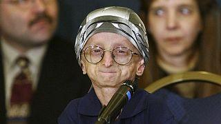 جان تاکت، ۱۵ ساله، دارای اختلال ژنتیکی پروگریا؛ میشیگان؛ سال ۲۰۰۳