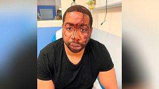 مردی که به دست ماموران پلیس فرانسه مجروح شد