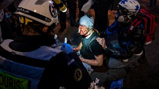 AFP ve Polka Magazine için çalışan serbest fotoğrafçı Ameeer Alhalbi, protesto sırasında yaralandı