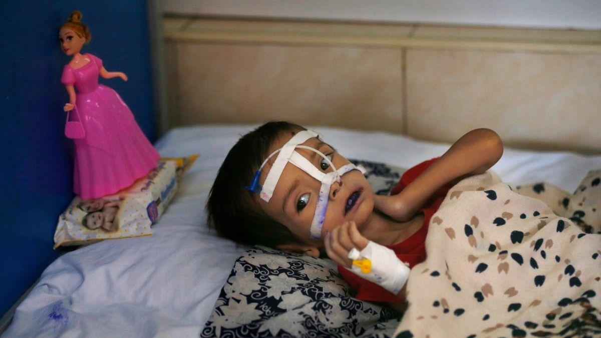 Rapor: Dünya genelinde 5 yaşın altında 11 milyon çocuk açlıktan ölme sınırında | Euronews
