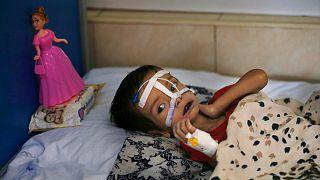 Dünya genelinde 11 milyon çocuk açlıktan ölme tehlikesiyle karşı karşıya