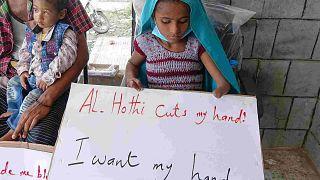 لافتات مناهضة للحوثيين في مستشفى حيس بمحافظة الحديدة غرب اليمن، 11 نوفمبر / تشرين الثاني 2020