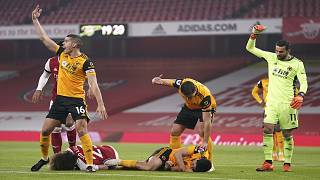 Wolverhampton forward Raul Jimenez was hospitalized with a serious head injury after colliding with Arsenal defender David Luiz on Sunday