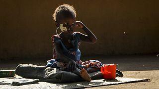 Yetersiz beslenme nedeniyle ödem şikayeti yaşayan 2 yaşındaki Akon Morro, tedavi gördüğü hastanenin bahçesinde otururken