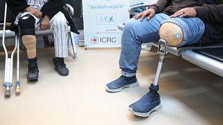 مبتورو الأطراف جراء الحرب في ليبيا بين مطرقة العلاج وسندان الانتظار الطويل