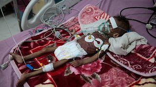 کودک قحطی زده یمنی