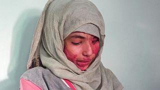 وجه الشابة العنود حسين شريان المشوه مرآة لمعاناة نساء اليمن من العنف والزواج المبكر