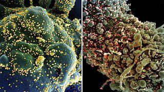 """Cellule infettate dal Sars-CoV-2. Il virus si attacca attraverso una proteina, Spike, resa """"inoffensiva"""" dagli anticorpi monoclonali"""