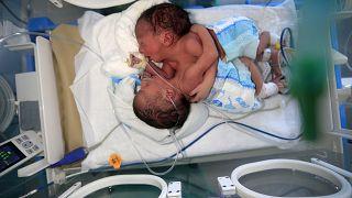 ولادة  توأمين سياميين في اليمن ونقلهم إلى الأردن- أرشيف