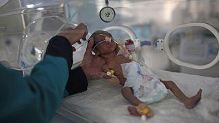 5 yaşın altındaki her altı çocuktan biri bu yıl hayatını kaybetme riski taşıyor