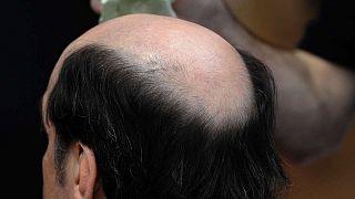 Saçlarını kaybeden bir adam
