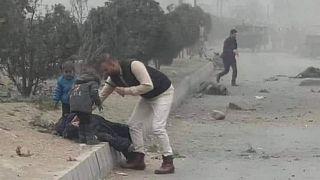 یکی از مجروحان حمله کابل