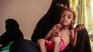 هشدار سازمان ملل در مورد قحطی در یمن