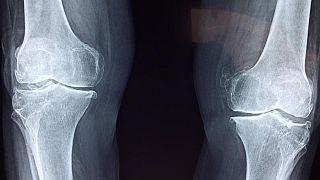 diz röntgenleri
