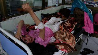 زنی از هرات افغانستان که در جریان خشونت خانگی سوخته است