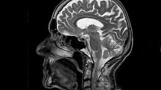 تصویر از مغز انسان
