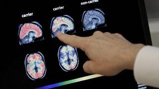 ABD'de beyin filmini inceleyen bir doktor