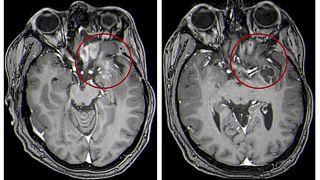 صورة بالرنين المغناطيسي للدماغ