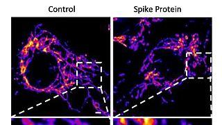 Células del endotelio sanas (izda.) y tratadas con la proteína S del coronavirus (dcha.) muestran fragmentación mitocondrial en el sistema vascular.