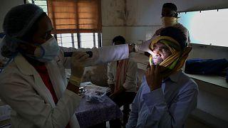 مريض بالفطر الأسود في الهند