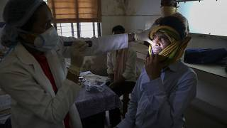 A doctor checks a man who recovered from COVID-19 and now infected with black fungus at the Mucormycosis ward of a hospital in Hyderabad, India, May 20, 2021