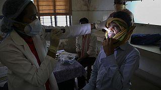 Ein Mann mit Mukormycose nach einer Covid-19-Erkrankung im Krankenhaus in Hyderabad, Indien, 20.05.2021