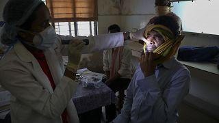21 maggio 2021: un medico controlla un uomo guarito dal COVID-19 e ora  infettato dal fungo nero in un ospedale governativo a Hyderabad, India,