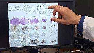 differenze nella progressione degli stessi tumori in topi con e senza trimerbodies