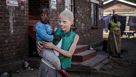 7e anniversaire de la journée internationale de l'albinisme