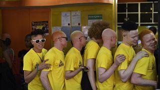 Защитить альбиносов от дискриминации