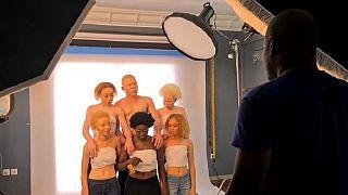 Cameroun : le combat d'une actrice pour la normalisation de l'albinisme