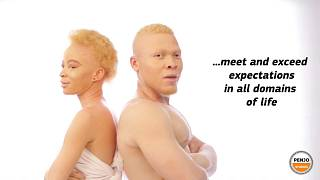 Cameroonian actress Memba shines light on persons with albinism