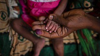 Foto de una madre con su hija malnutrida en un hospital de Tigray, Etiopía