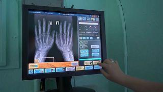 """L'uomo dalle """"mani elettroniche"""" vive a Novosibirsk: con cinque chip, la vita è più semplice"""