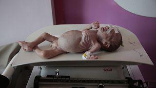 الطفل ماهر أحمد، الذي يعاني من سوء التغذية في مركز للتغذية بمستشفى السبعين في صنعاء- اليمن.