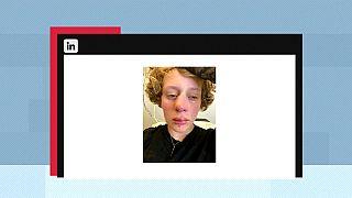 Der Vater der 14-jährigen Frédérique postete ein Foto seiner Tochter nach dem Angriff