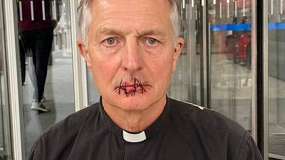 A priest has sewn his lips together to protest against the alleged lack of climate coverage in Rupert Murdoch's media empire.