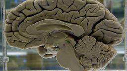 دراسة: الإصابة بكوفيد-19 قد تؤدي إلى الإصابة بمرض الزهايمر على المدى الطويل