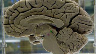 قسم من دماغ بشري معروض في متحف التشريح العصبي في جامعة بوفالو، نيويورك، الثلاثاء 7 أكتوبر 2003