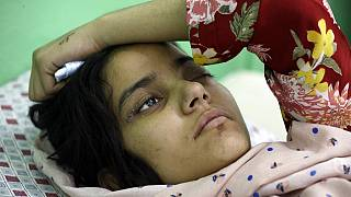 An Afghan girl receives medical care at the International Committee of the Red Cross (ICRC) physical rehabilitation center after being injured in fighting between the Taliban