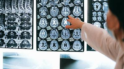 Algorithm developed by Lithuanian researchers can predict possible Alzheimer's with nearly 100 per cent accuracy