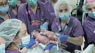 أطباء إسرائيليون ينجحون في فصل توأمين يبلغان من العمر عامًا واحدًا ملتصقين عند الرأس في مركز بئر السبع سوروكا الطبي.