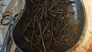 The assortment of metal objects removed from the man's stomach