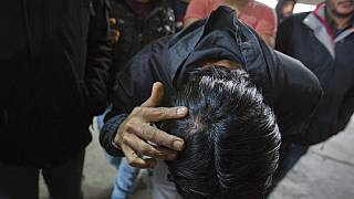 A migrant who claims he was beaten by Croatian police while attempting to cross the border to Croatia shows his injury in Bihac, Bosnia-Herzegovina, Wednesday, March 13, 2019